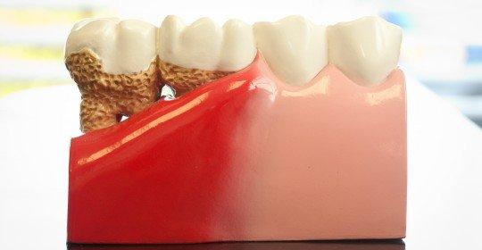 In bataia inimii…sa prevenim boala parodontala