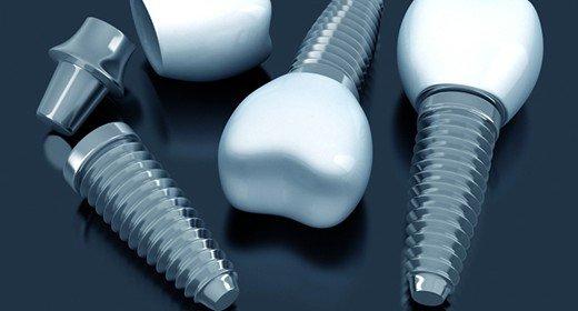 Etapele necesare obtinerii unei restaurari pe implant